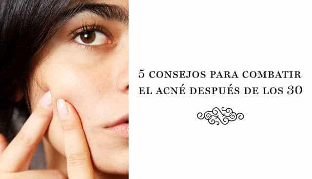 5 consejos para combatir el acné después de los 30